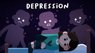 PENYAKIT DEPRESI SEMBUH, SIAPAPUN BISA TERSERANG INI,  DENGARKAN RENUNGAN INI SOLUSI AGAR TDK STRESS.