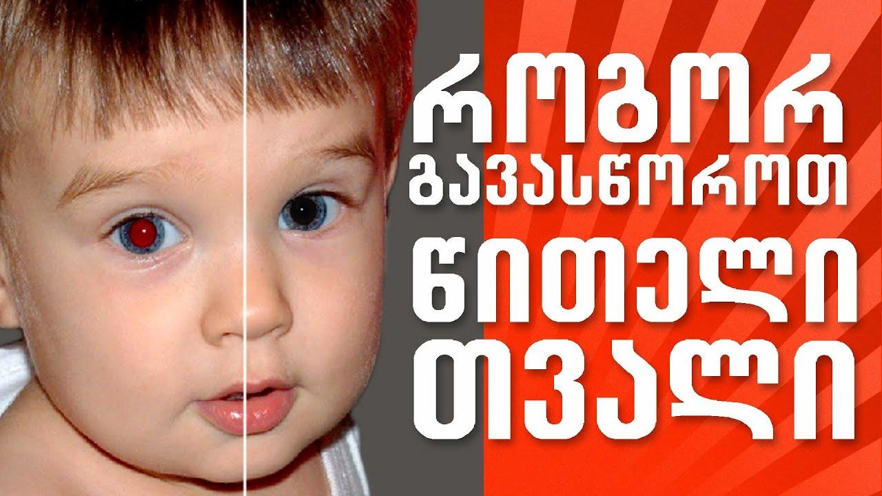 როგორ გავასწოროთ წითელი თვალი – How to remove red eye in Photoshop