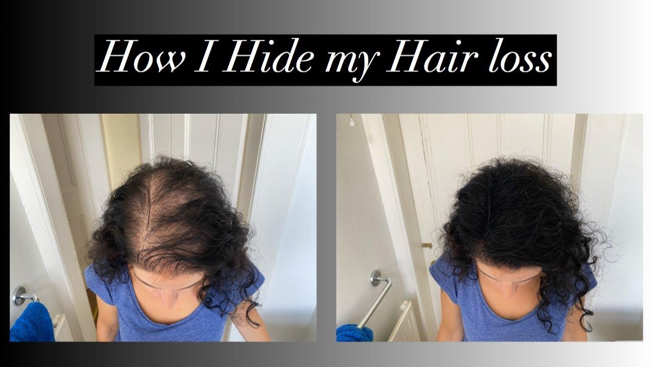 How I hide my hair loss / Female Pattern baldness ...