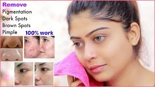 How To Do Facial Clean Up At Home Step By Step For Spotless, Clear Skin   Rinkal Soni