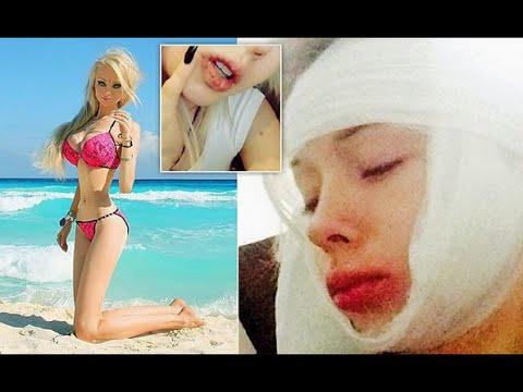 Human Barbie - Valeria Lukyanova มนุษย์บาร์บี้ ซวย!คนหมั่นไส้ต่อยหน้ายับเยิน