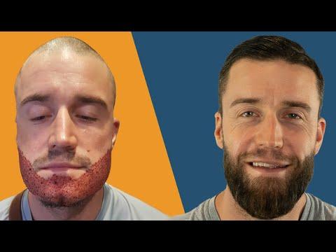 Barttransplantation Kosten & Schmerzen | Patient offen und ehrlich!
