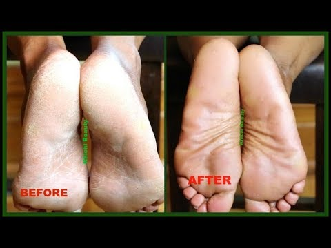 WOW! This Is Amazing! I MIXED VASELINE WITH 3 OILS AND LOOK WHAT IT DID TO MY FEET |Khichi Beauty