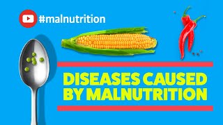 Diseases Caused by Malnutrition
