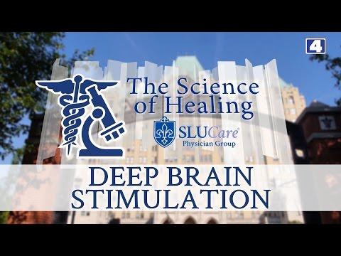 The Science of Healing:  Deep Brain Stimulation at SLUCare