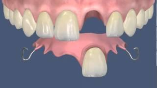 Протезирование: Флиппер для зуба 21(, 2013-02-12T07:04:06.000Z)