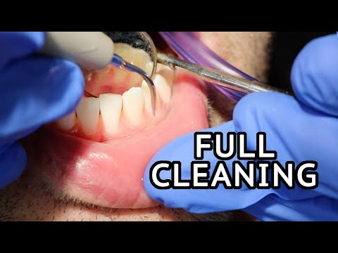 How Teeth Are Cleaned At The Dentist