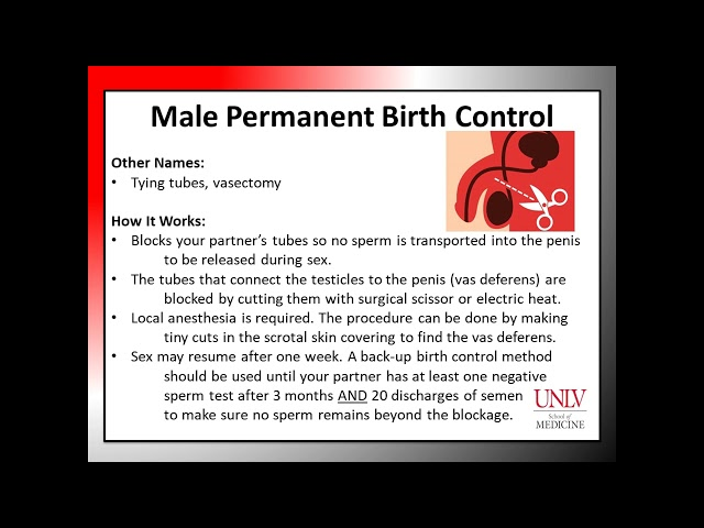 BC Module 2 2 Male Permanent Birth Control