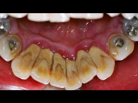 Cara Perawatan Gigi Dan Mengatasi Karang Yang Dapat Mengakibatkan