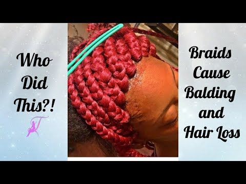 Who Did This?! Braids Cause Hair Loss and Balding | May Giveaway Winner Announcement!