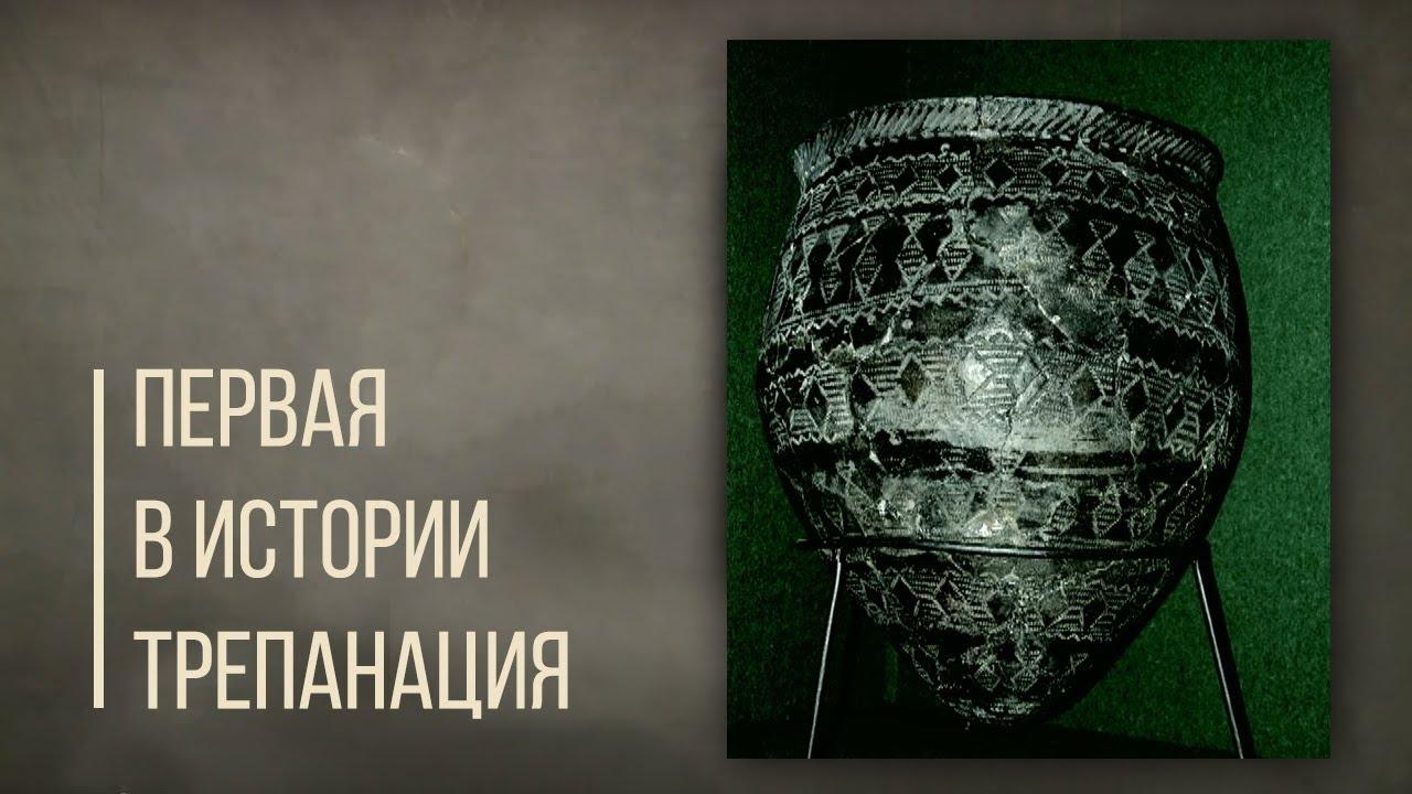 Первая в истории трепанация черепа, кумыс и тандыр. Дорога людей.