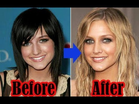 Top 10 Beautiful Female Celebrity Plastic Surgery Transformations -2018|You  won't Belive