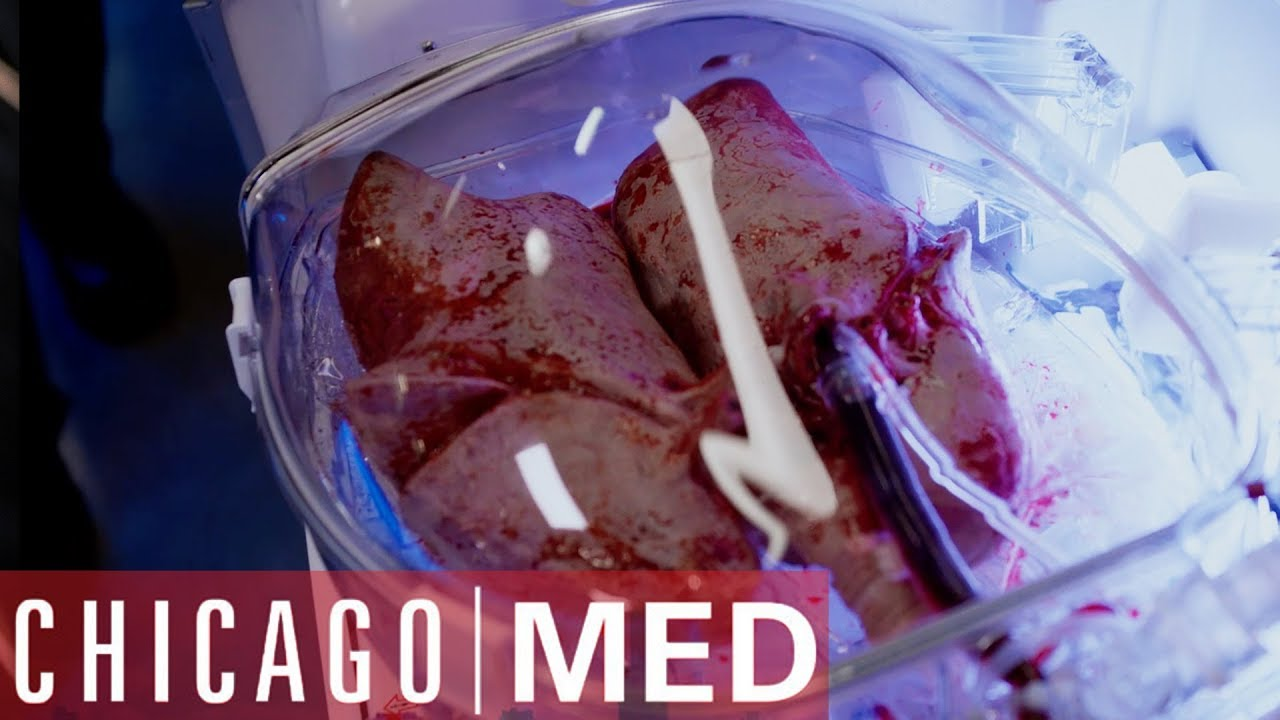 Download Dr Rhodes Takes The Lead On A Lung  Transplant | Chicago Med