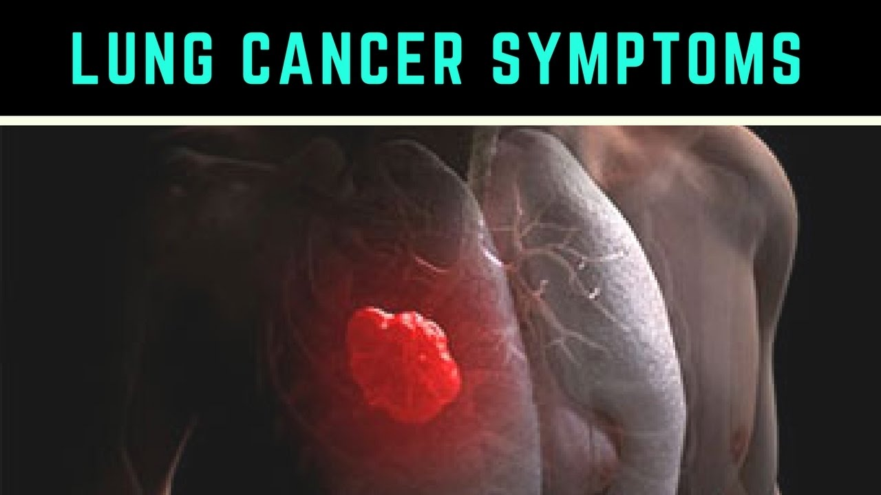 ▓ Lung Cancer █ Life Expectancy █ Causes Types █ Symptoms ✫ Stages ✔