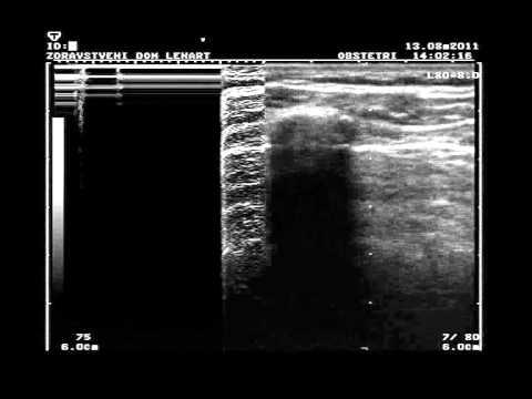 Normal lung vs. pneumothorax