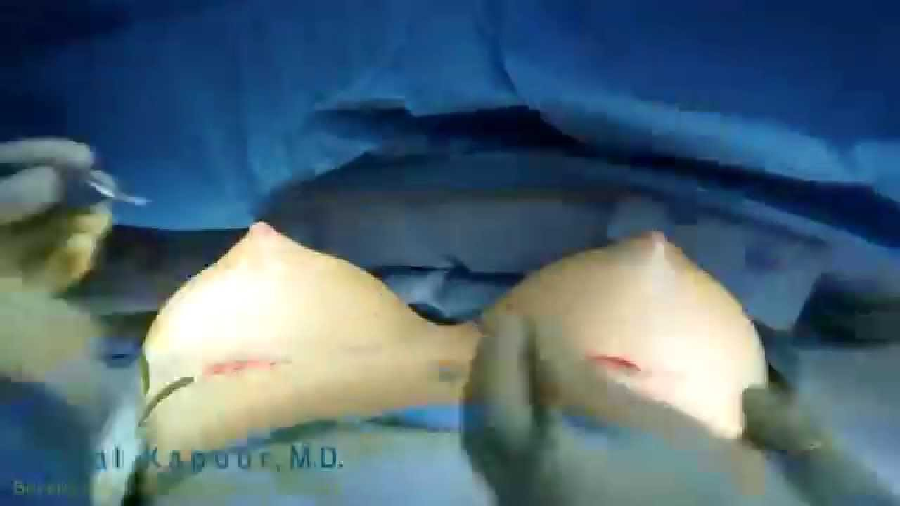 Time Lapse Breast Growth 93