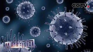 [中国新闻] 美国麻疹确诊病例增至839例 上周新增75例麻疹病例 | CCTV中文国际