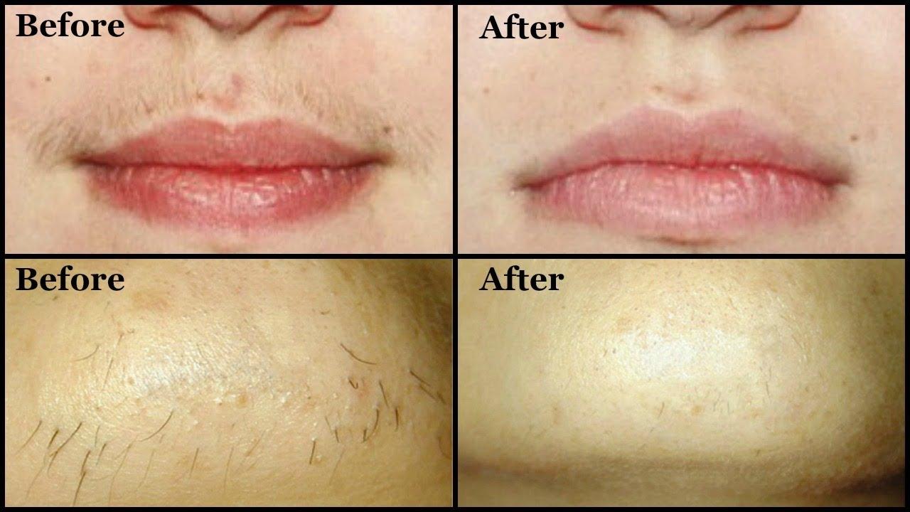 Indgroet hår på ansigt Kvindelige Amathairco-1117