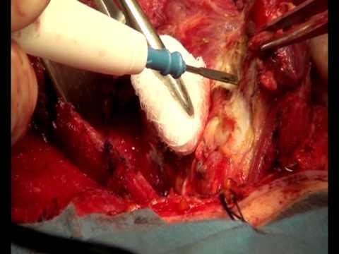 операция по удалению щитовидной железы сколько длится