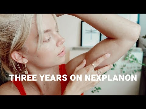 3-years-on-the-contraceptive-implant-(implanon/nexplanon)-|-my-birth-control-experience