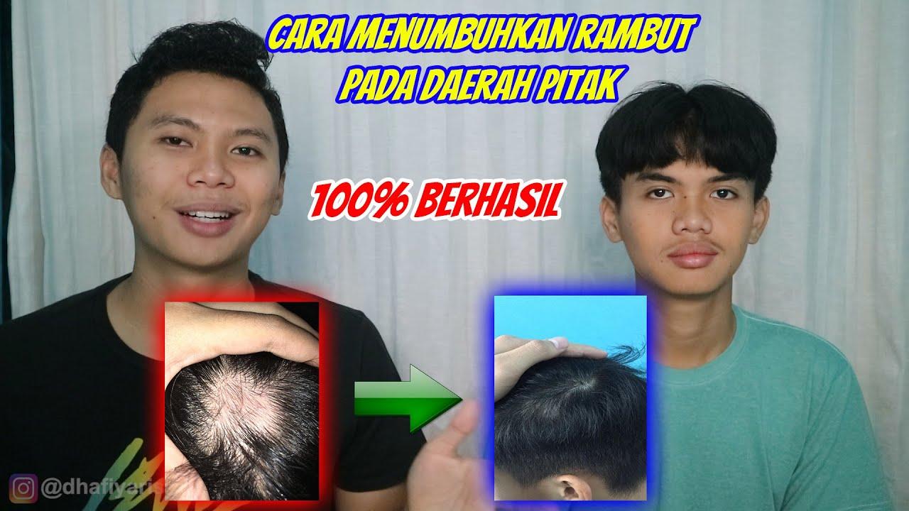 Download CARA MENUMBUHKAN RAMBUT PITAK (NO CLICKBAIT)   100% BERHASIL