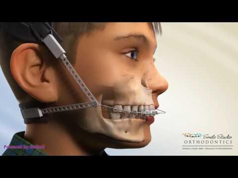 Class II Head gear - Combination Pull - Orthodontic Device