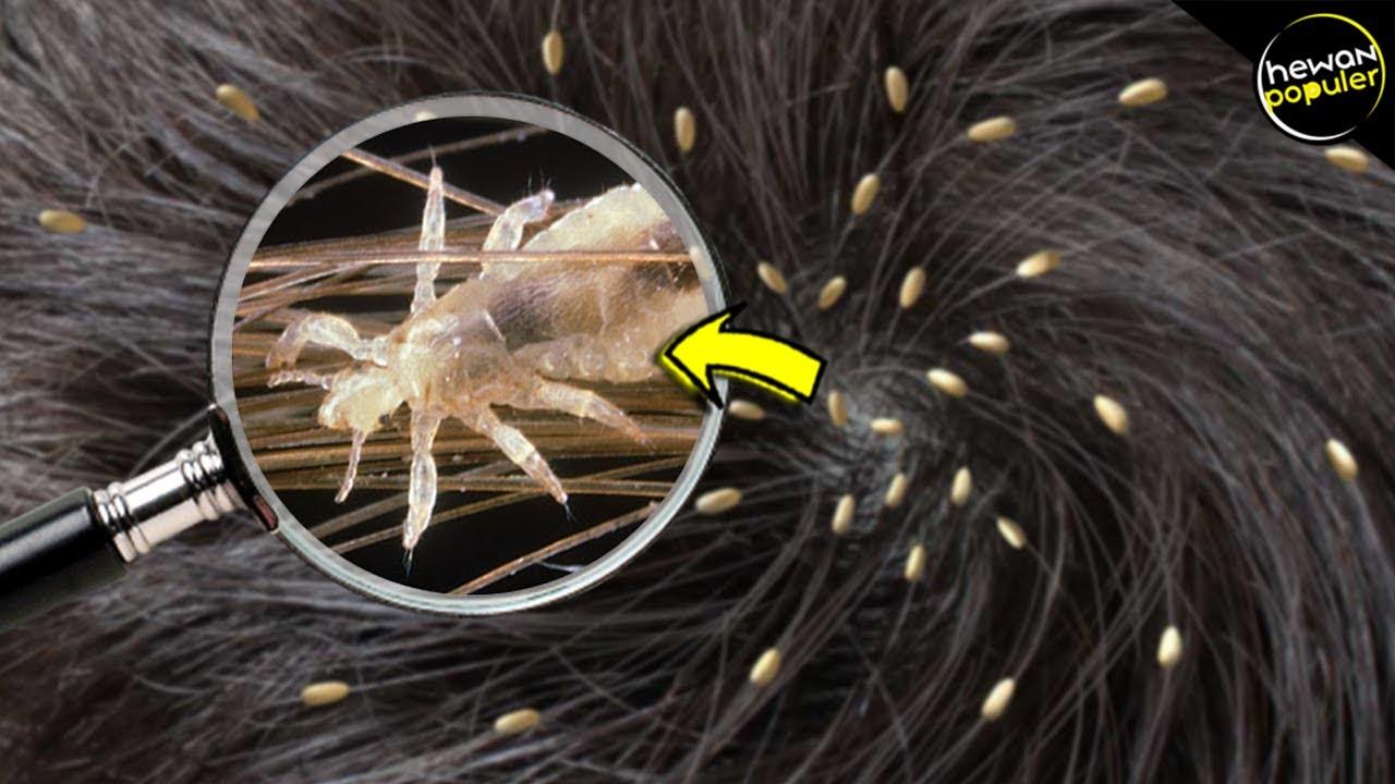 Inilah Penyebab Kutu Rambut Bersarang Di Kepala Anda Jangan Disepelekan Youtube