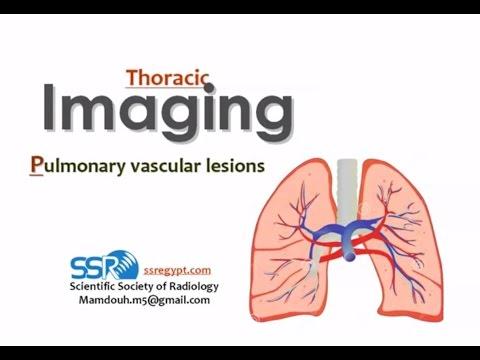 Imaging of Pulmonary vascular diaeases - Prof Dr. Mamdouh Mahfouz (In Arabic)