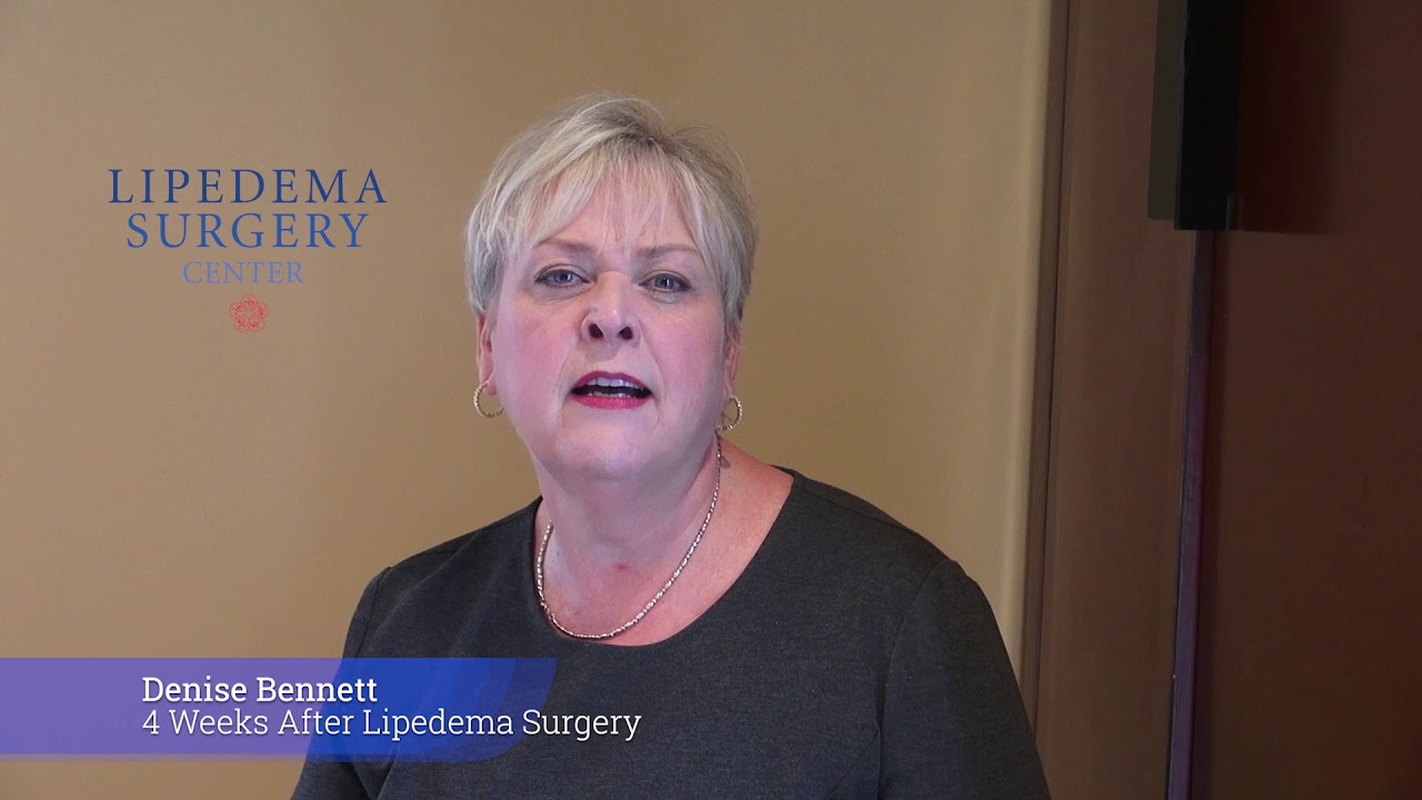 4 Weeks After Lipedema Surgery