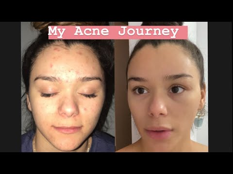 MY ACCUTANE JOURNEY (how I Got Rid Of My Acne)