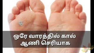 ஒரே வாரத்தில் கால் ஆணி செரியாக!!!!!!!(foot corn removal at home in tamil)