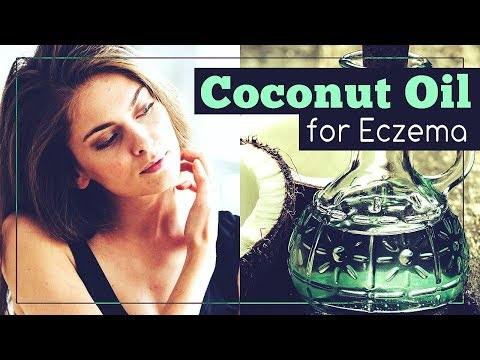 Coconut Oil for Eczema: How to Use It?