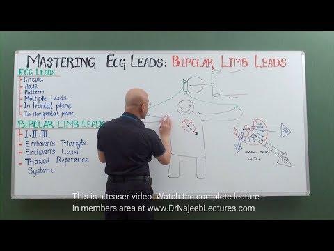 EKG - Bipolar Limb Leads