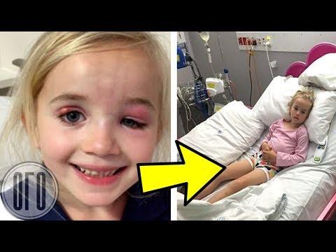 Девочка СТРАННО УЛЫБАЛАСЬ, Врачи Сразу Увезли Ее На Операцию…
