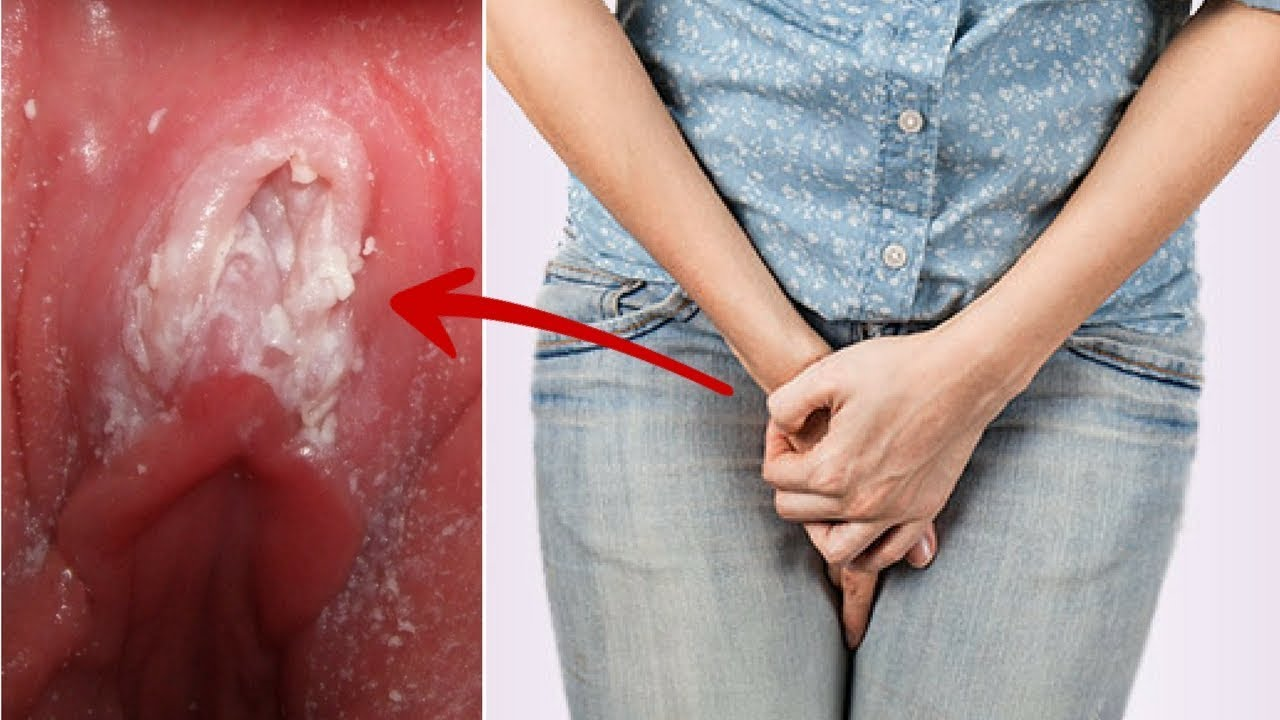 Vaginal itching, rashes