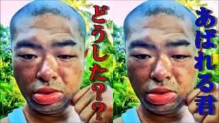 あばれる君、蚊に刺され顔が変形!ファンから「顔が暴れてる」 あばれる...