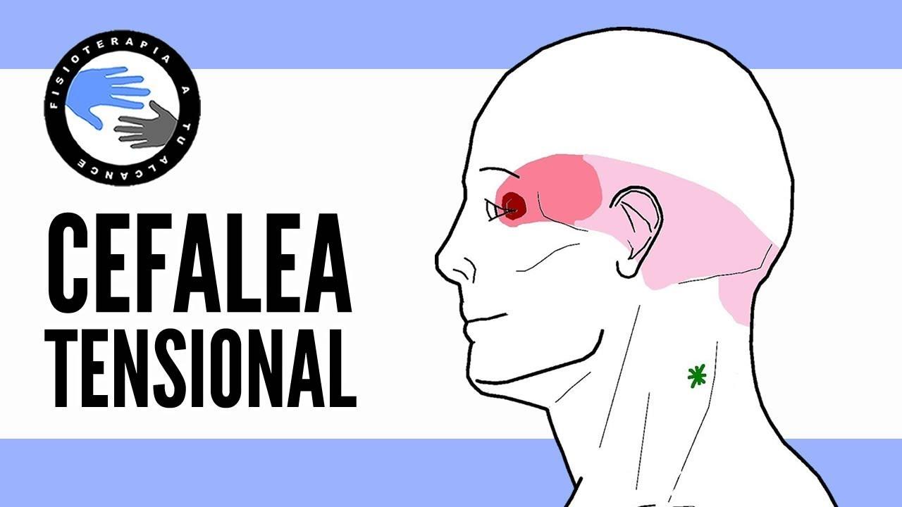 Migraña o dolor de cabeza por tensión