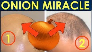 How to use Onion Juice to Stop Hair Loss and Promote Hair Regrowth - Grow beautiful hair