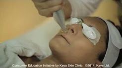 hqdefault - Kaya Skin Clinic Prices For Acne Treatment