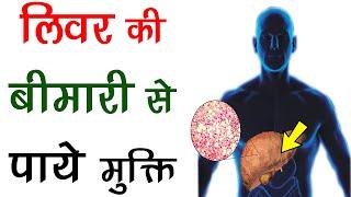 बिना दवा के लिवर की बीमारी से पाये मुक्ति - How To Treat Liver Disease naturally