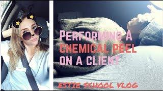 Client Day at Estie School! Chemical Peel