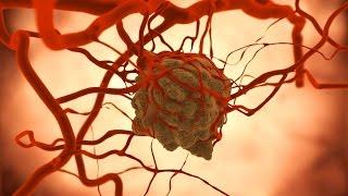 أخبار الصحة - دراسات: 33% من البشر مهددون بالسرطان