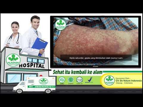 bahaya-penyakit-menular-sifilis-|-gonore-|-kencing-nanah