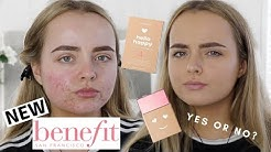 hqdefault - Benefit Cosmetics For Acne Prone Skin