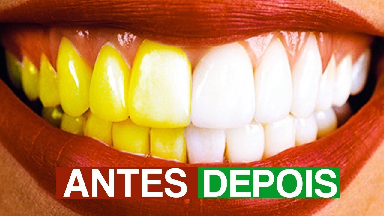5 Truques Para Clarear Os Dentes Em 2 Minutos Youtube