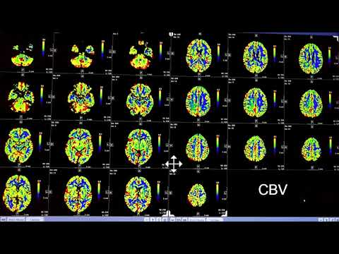 Video 2 of 3:  How to Interpret a Brain CT Perfusion Scan for acute stroke