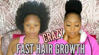 You Want Believe What I Did To Grow My Short Natural Hair Fast & Long With NO PILLS