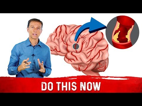 How to Avoid a Silent Stroke