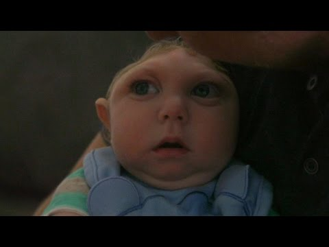 'Miracle Baby' Born Without Most of His Brain Defying Odds | ABC News