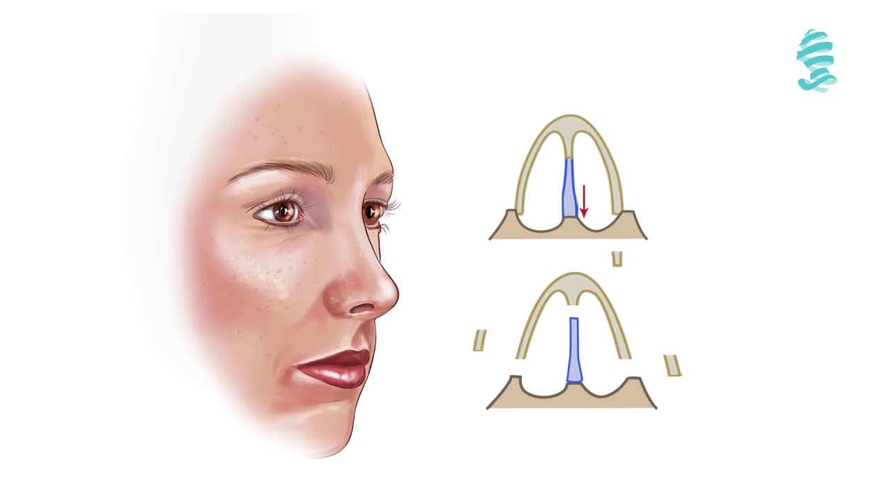 What is rhinoplasty (Nose surgery)? – EAFPS
